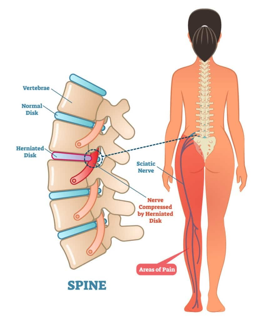 What is sciatica and what are the causes
