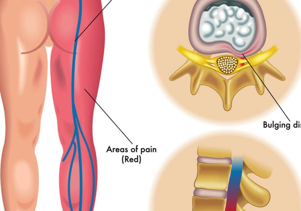 What is Sciatica - a guide